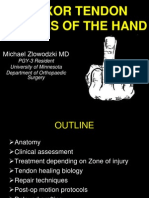 43_Zlowodzki - Flexor Tendon Injuries of the Hand