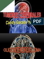 Neuro Expo Candy