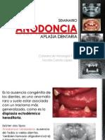 Aplasia Dentaria