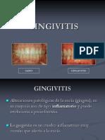 12gingivitis-1220658117779693-8