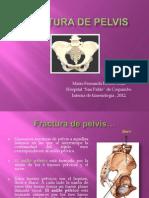 Fracturas de Pelvis. Presentacion.