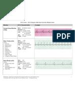 2155828 EKG Examples