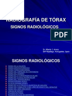 RADIOGRAFÍA DE TÓRAX. SIGNOS RADIOLÓGICOS