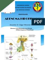 Adenoma Hipofisiario