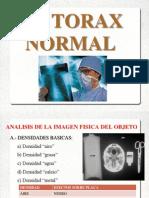 Rx Torax Normal y Patologica