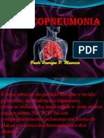 Broncopneumonia (BCP)