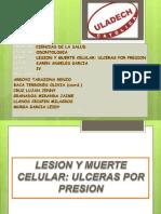 Exposicion de Patologia Ulceras Por Presion de Campos Escobedo