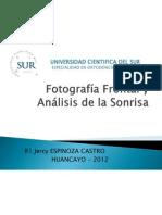 Análisis Facial (frontal)