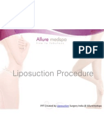 Liposuction- Sculpt and Shape Your Body.