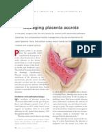 management placenta accreta