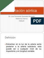 Coartación aórtica