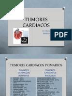 TUMORES CARDIACOS