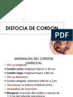 Distocia de Cordon