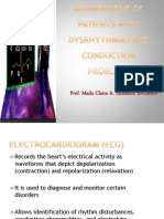 Dysrhyrtmia
