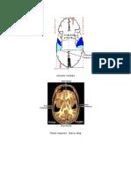 neuropihologie