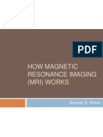 How Magentic Resonance Imaging (MRI) Works
