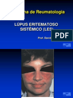 Aula 04 - Lupus