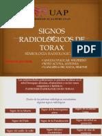 Signos Radiologicos de Torax_exponer
