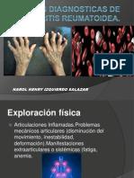 Pruebas Diagnosticas de Artritis Reumatoidea
