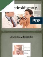 Hipotiroidismo Walter 1