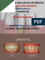 Exposicion de Perio de Gingivitis