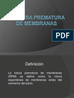 RPM (1)