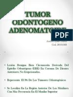 Tumor Odontogeno Adenomatoide