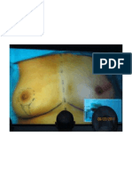 Patient Selection for DTI ADM Reconstruction
