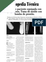 Caso de paciente equipada con pre-prótesis.