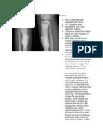 Osteosarcoma RA