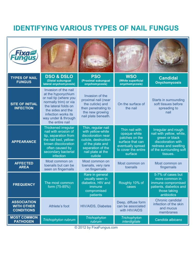 Identifying Types of Nail Fungus