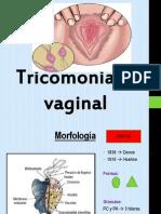 Tricomoniasis Vaginal