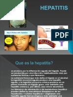 Hepatitis Mf 2009