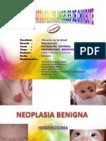 Neoplasia Benigna - Hemangioma