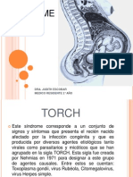 torch-120525103900-phpapp01