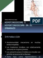 Enfermedades Tiroideas en El Embarazo