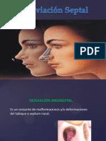Desviacion Tabique Nasal.