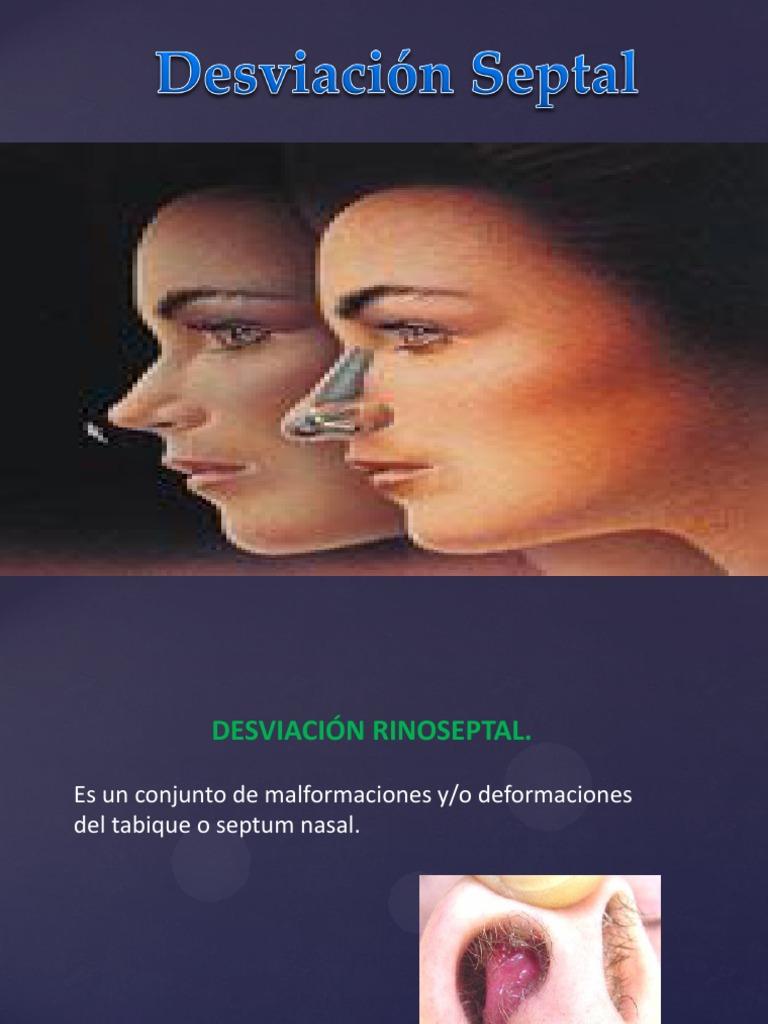Huesos que forman el tabique nasal y cabeza