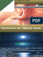 Desviacion Del Tabique Nasal