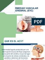 Enfermedad Vascular Cerebral (Evc)