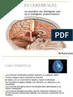 13-tumores-cerebrales