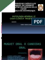Caso Clinico de Muguet Oral