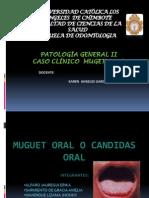Muguet Oral