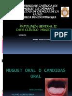 Muget Oral- Exposicion
