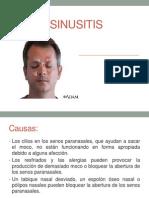 Cirugía-Sinusitis