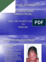 MALFORMACION MAXILOFACIAL