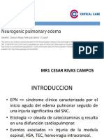 Edema Pulmonar Neurogenico