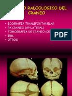 Cerebro Basic