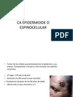 CA EPIDERMOIDE O ESPINOCELULAR.pptx