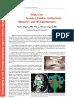 Non-Invasive Ablation of Cardiac Arrhythmia